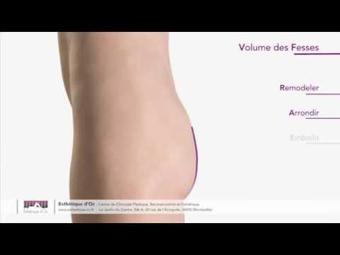 augmentation du volume de la rate augmentation du volume des fesses. esthétique d