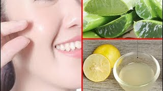 2 Techniques Using Aloe Vera With Lemon &amp Sugar Face Whitening   Face Whitening Home Tips