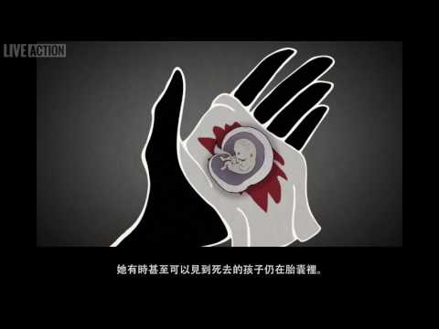 Medical Abortion (Traditional Chinese)