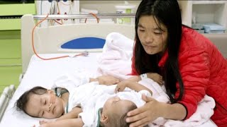 Conjoined twins successfully separated in Australia