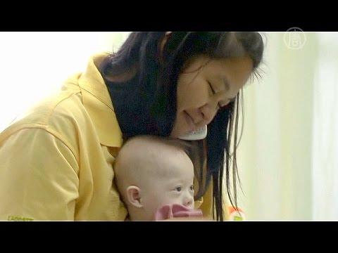 Новорожденные дети с синдромом Дауна