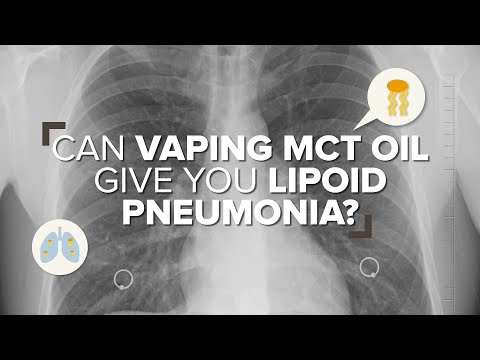 Can Vaping MCT Oil Give You Lipoid Pneumonia?