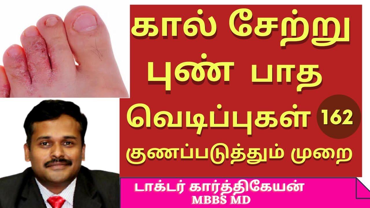 athlete's foot treatment | சேற்றுப்புண் குணமாக என்ன செய்ய வேண்டும் setru pun marunthu|dr karthikeyan