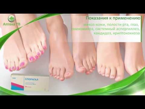 Системные микозы: лечение, симптомы, препараты, фото
