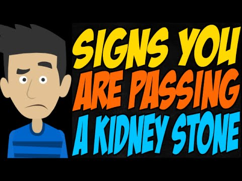 Signs you are passing a kidney stone youtube signs you are passing a kidney stone ccuart Gallery