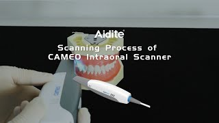 Scanning Process of CAMEO Intraoral Scanner