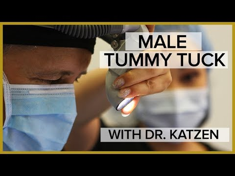 MALE TUMMY TUCK - TRANSFORMATION TUESDAY WITH DR. KATZEN