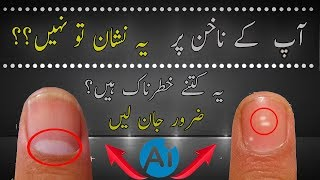 White Spots On Nails | What Causes White Marks On Nails In Urdu/Hindi