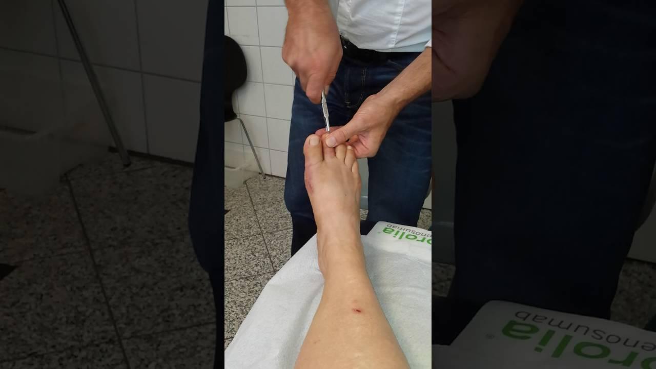 Kirschnerdraht von Zeh entfernen K-wire removal from my toe - YouTube
