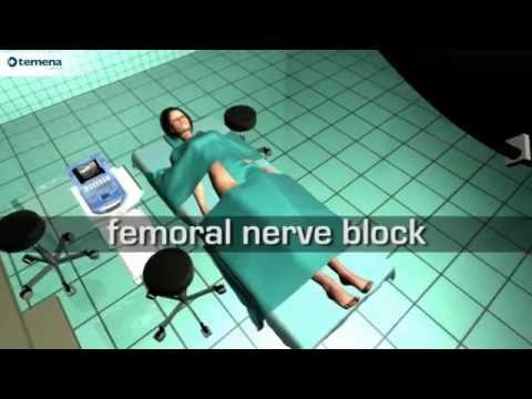 femoral nerve block for knee replacement surgery, Muscles