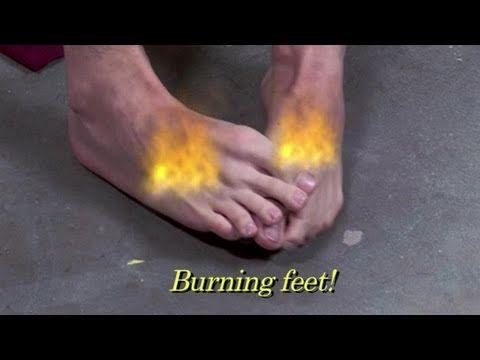 How To Deal With Athlete's Foot