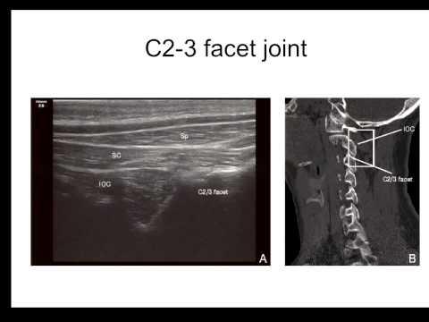 Pain Medicine - Cervical Facet, Medial Branch and Nerve Root