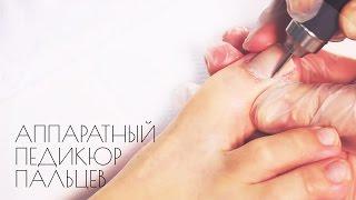 Аппаратный педикюр пальцев