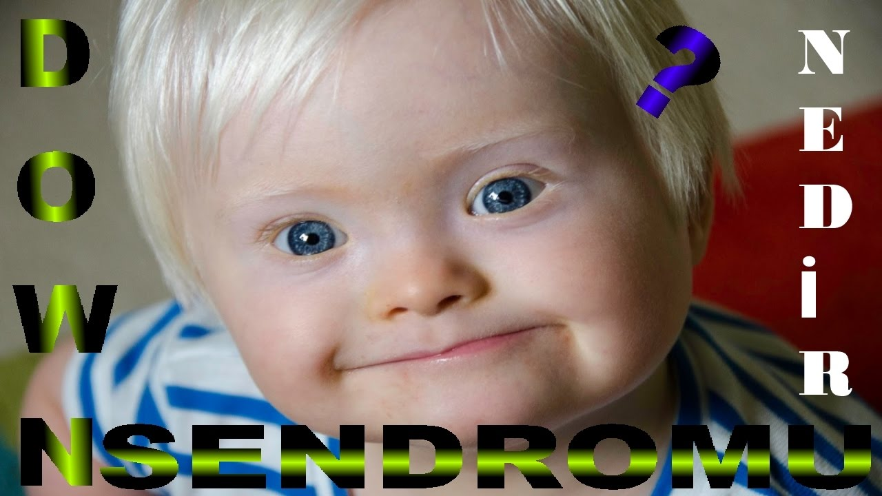 down s syndrome Down syndrome is a genetic disorder caused by an extra chromosome 21 risk factors for down syndrome are the age of the mother at the child's birth it is the most common cause of cognitive.