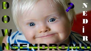 Down Sendromu Nedir ? Ailelerin Dikkatine!!