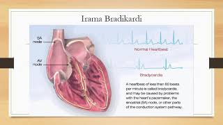 Dunia Sehat Kenali Gejala Lemah Jantung | DAAI TV.