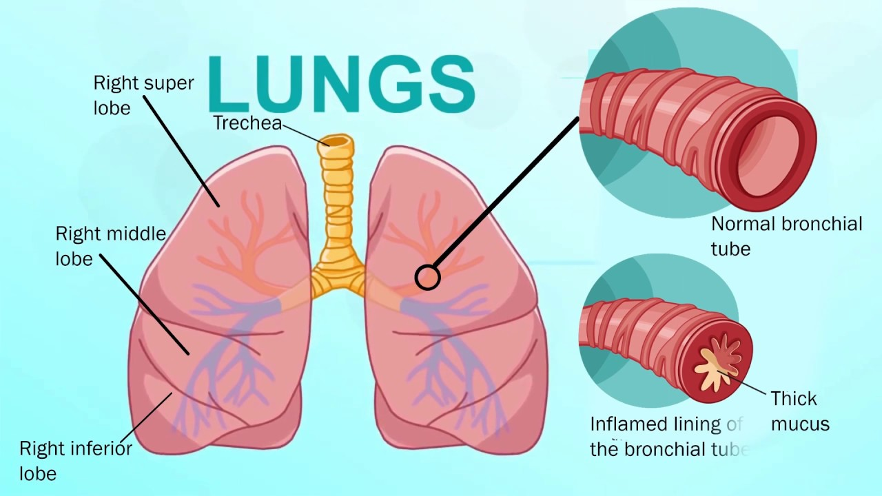 What Is Bronchitis Youtube
