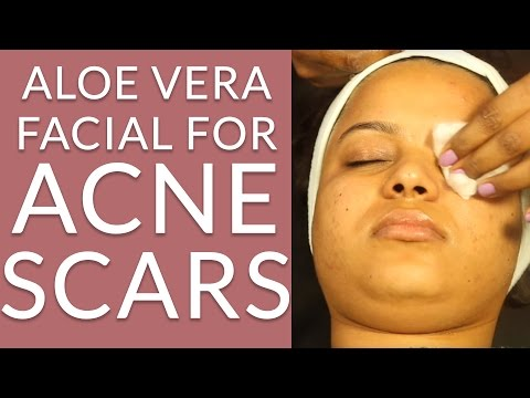 How To Make ALOE VERA FACIAL AT HOME For Acne Prone Skin