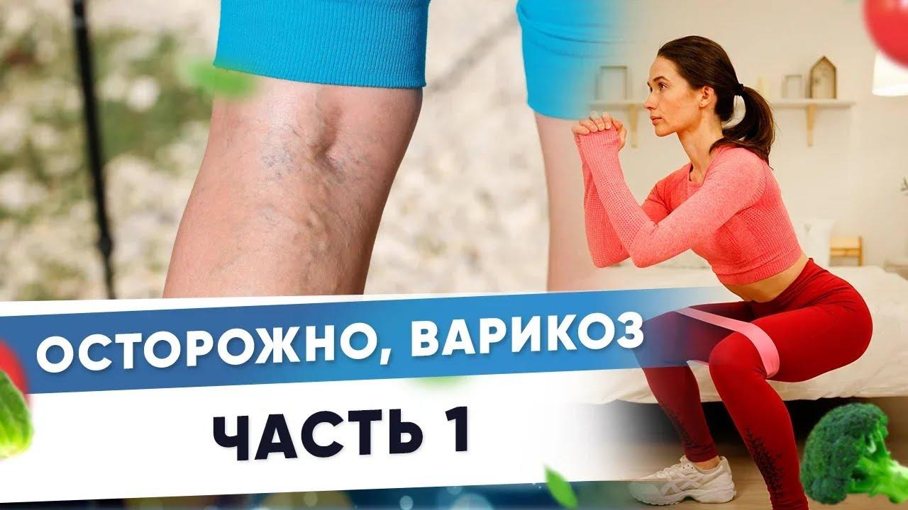 Варикозное расширение вен. Причины возникновения варикоза.Часть1  Фитнес-тренер Евгения Кузнецова12+