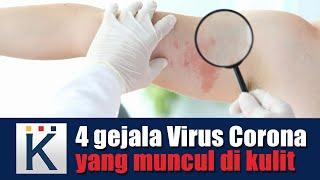 Biduran101 - dr. Mardiati Ganjardani, SpKK   Bamed Skin Care.