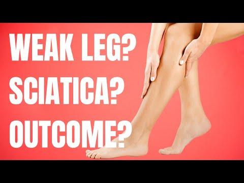 Sciatica Muscle Weakness