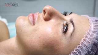 видео Чистка лица