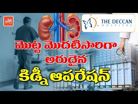 Deccan Hospital & KIMS Makes Swap Kidney Transplantation Successfully - Hyderabad | YOYO TV Channel