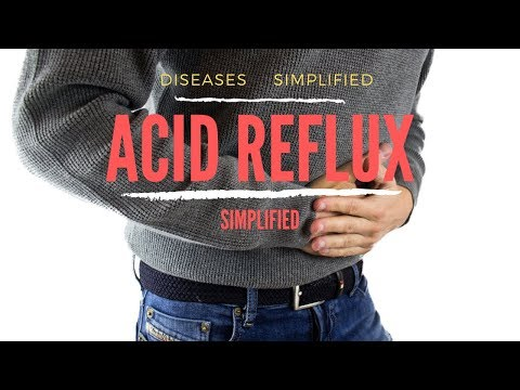 Acid Reflux Simplified