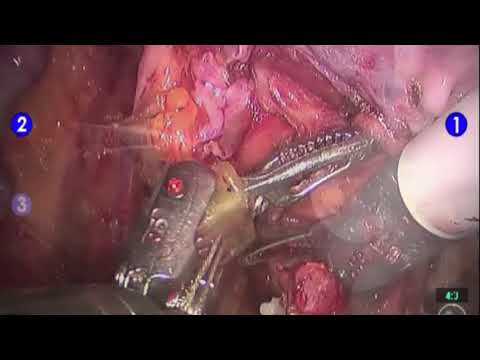 Robotic Female Radical Cystectomy Procedure   Brigham and Women's Hospital
