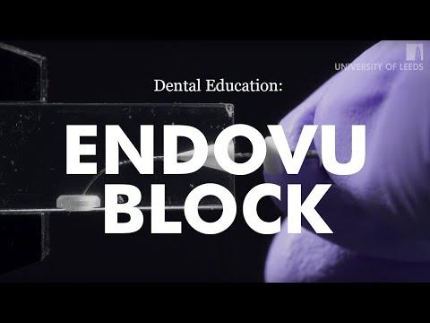 Award winning dental video: 'Hybrid Protaper Gold WaveOne Technique'