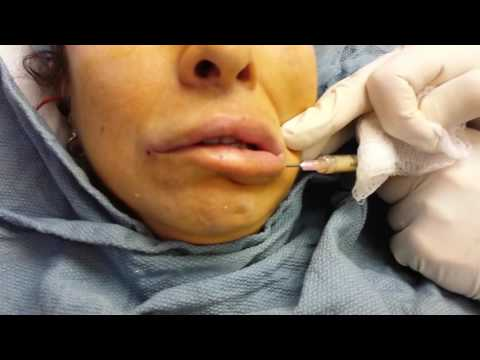 Lip Enlargement with Fat Injection