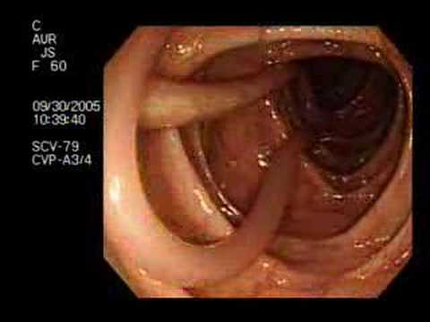 Digestion Problems Parasite Found In Colonoscopy