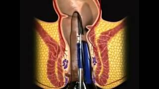 Laser Surgery for Piles Laser Hemorrhoidoplasty Surgery