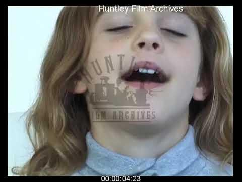 Emma Watson - Teeth Test / Fake Teeth in Harry Potter The Philosopher's Stone