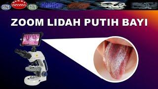 oral care nursing (perawatan mulut) pada pasien paliatif.