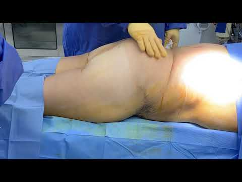 Massive Weight Loss Patient with Loose Skin Gets Brazilian Buttlift by Dr. Kenneth Benjamin Hughes