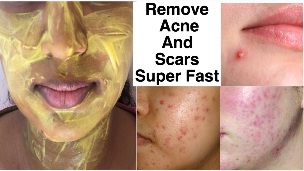 Best way to remove acne from face
