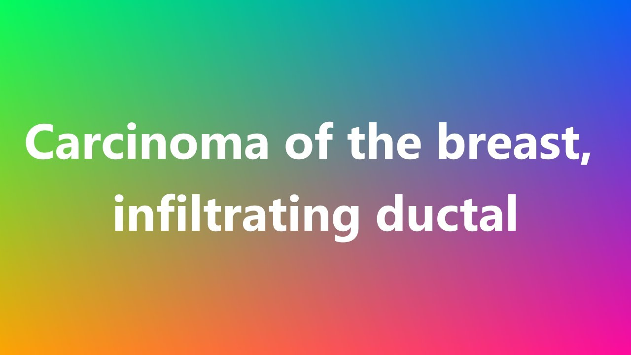 carcinoma of the breast, infiltrating ductal - medical definition