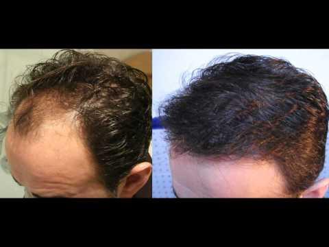 implante capilar implante capilar de cabello artificia doovi