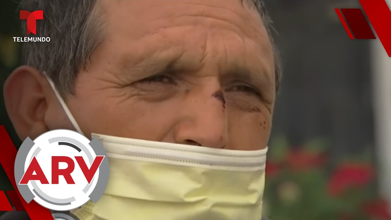 Captan asalto a un elotero que le rompieron la cabeza | Al Rojo Vivo | Telemundo