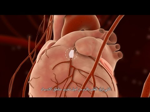 Percutaneous Coronary Intervention (PCI)