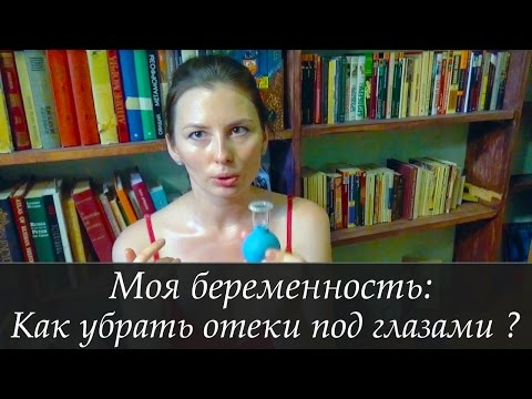 Отеки - Беременность - Форум Дети