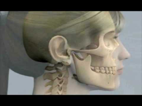 how to fix tmj disorder