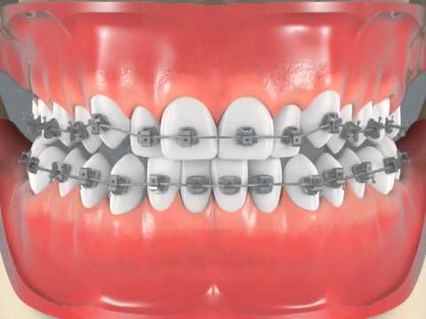 Braces For Crowded Teeth Center View Youtube