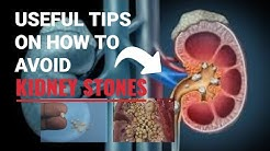 Useful Tips On How To Avoid Kidney Stones.