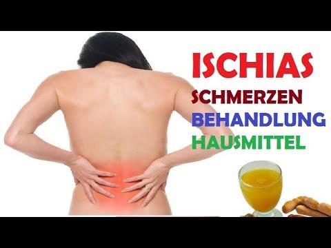 Ischiasschmerzen: Ursachen und Behandlungsmöglichkeiten
