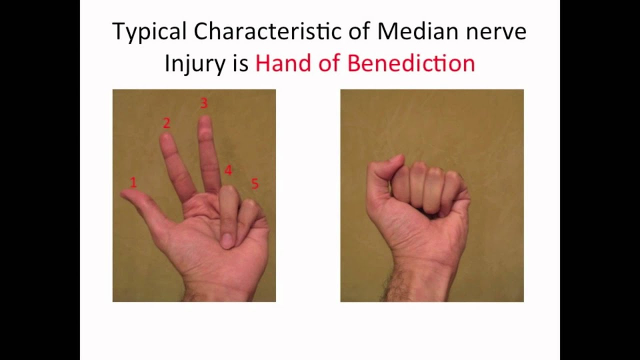 Typical Characteristic of a Median nerve injury - YouTube