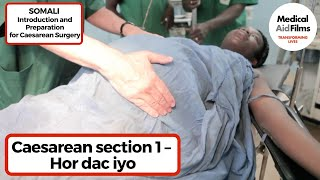 Caesarean section 1 – Hor dac iyo