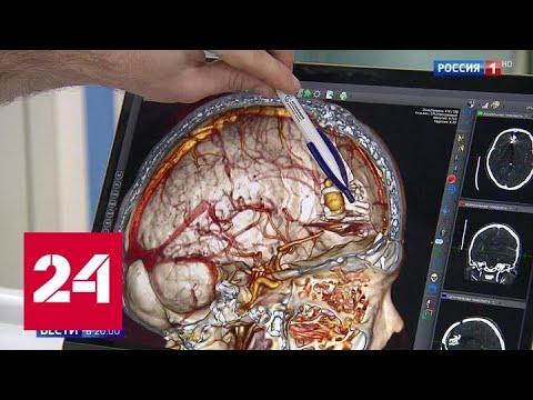 Избавили от аневризмы: уникальная операция от российских хирургов - Россия 24
