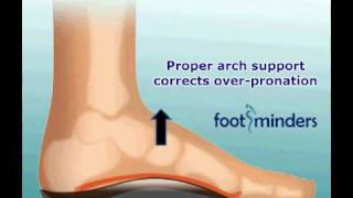 Foot Pain Due To Flat Feet And Over-pronation: An Easy Solution